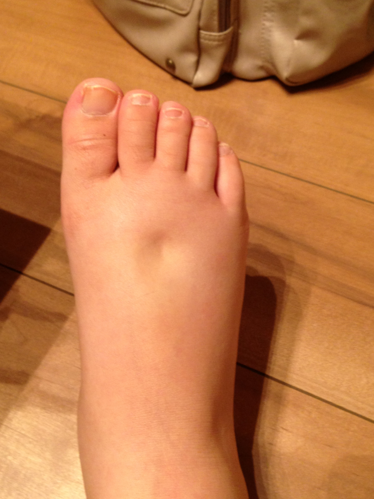 「脚のむくみ」の画像検索結果